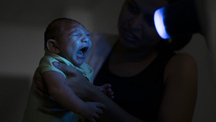 El zika podría ser causante de microcefalia y del Síndrome neurológico de Guillain Barré.