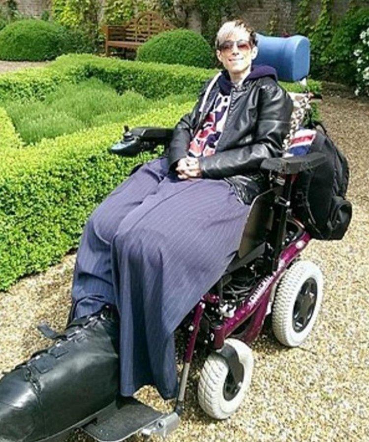 En 2010 los médicos decidieron amputarle parte de la pierna izquierda,