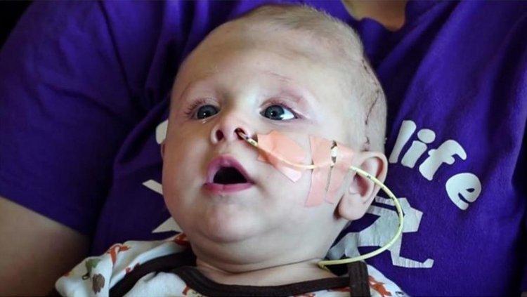 Betley, el bebé que nació con el cerebro afuera de su cabeza.