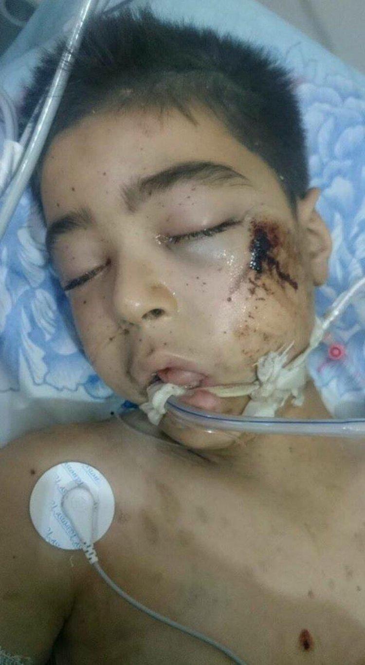 Alí, el hermano de Omran, falleció el sábado en el hospital por las heridas generadas en el bombardeo