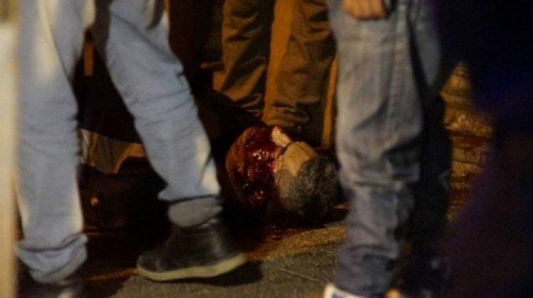 Uno de los Policías de la Federal baleados por otro de la Bonaerense.