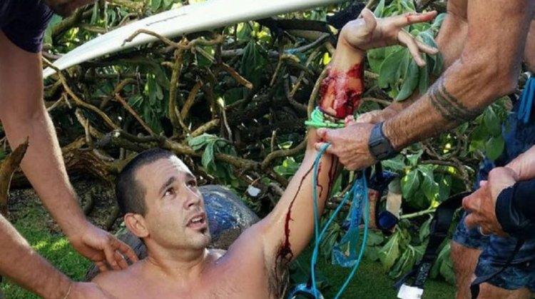 Federico Jaime recibe la ayuda de un paramédico que estaba en la playa, quien le realiza un torniquete en el brazo.