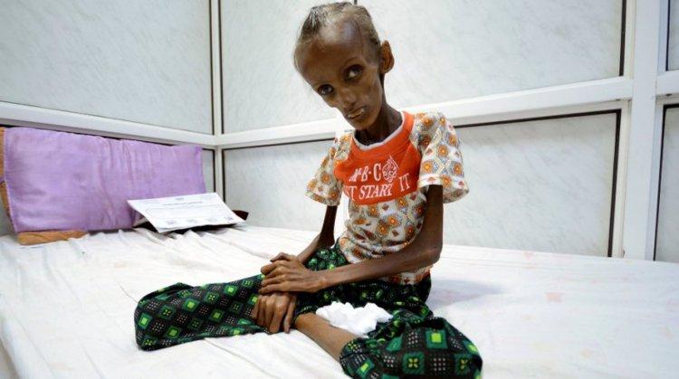 La desnutrición en Yemén, donde la mitad de los niños sufren retraso de crecimiento irreversibles. Esta foto conmueve al mundo.