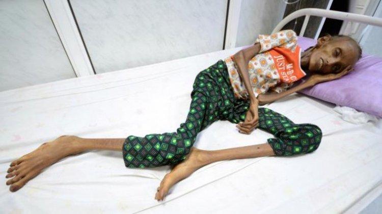 Saida Ahmad Baghili, tiene 18 años, y está afectada por una desnutrición grave y aguda. Es la portada del diario británico The Times.