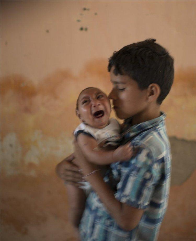 Un bebé con microcefalia, en Pernambuco, Brasil.