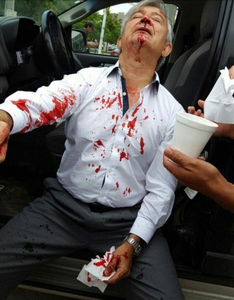 Martín Grande, el día que fue agredido por Sebastián Ramos.