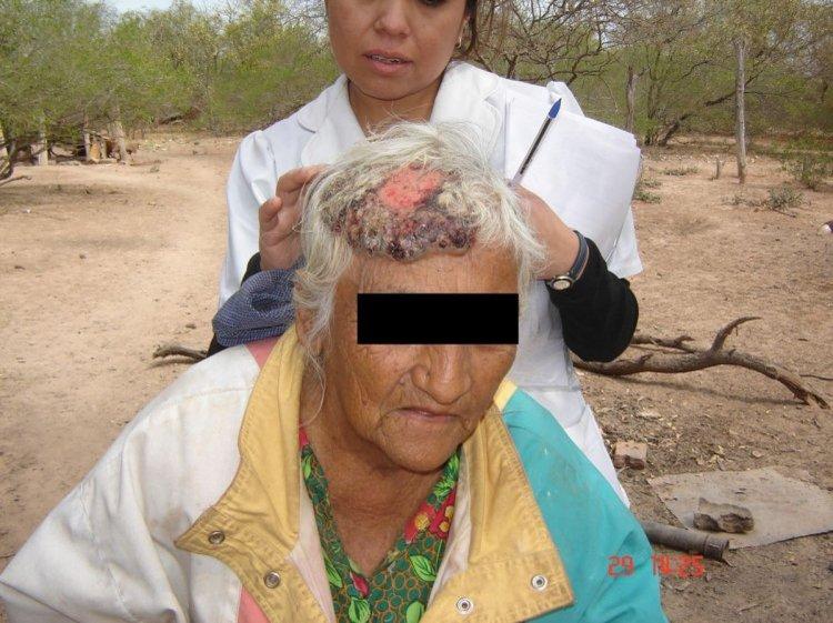 Un informe de El Tribuno realizado en octubre de este año detalló lo que hace el arsénico en la población de Rivadavia.